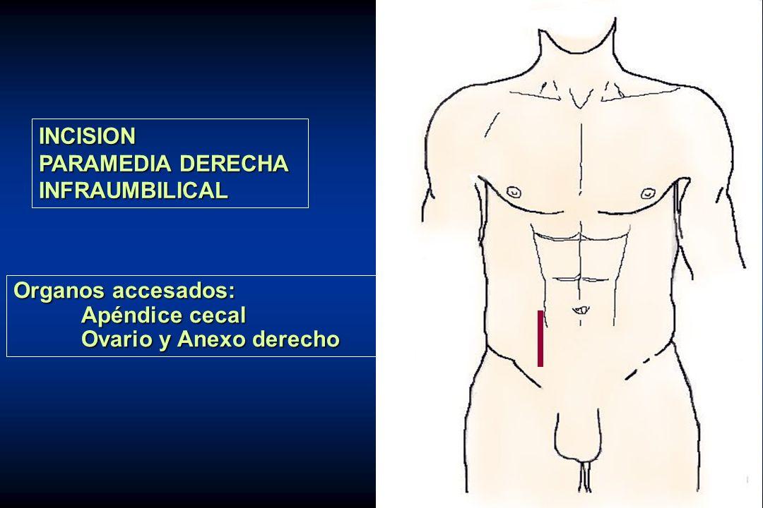 INCISION PARAMEDIA DERECHA INFRAUMBILICAL Organos accesados: Apéndice cecal Ovario y Anexo derecho