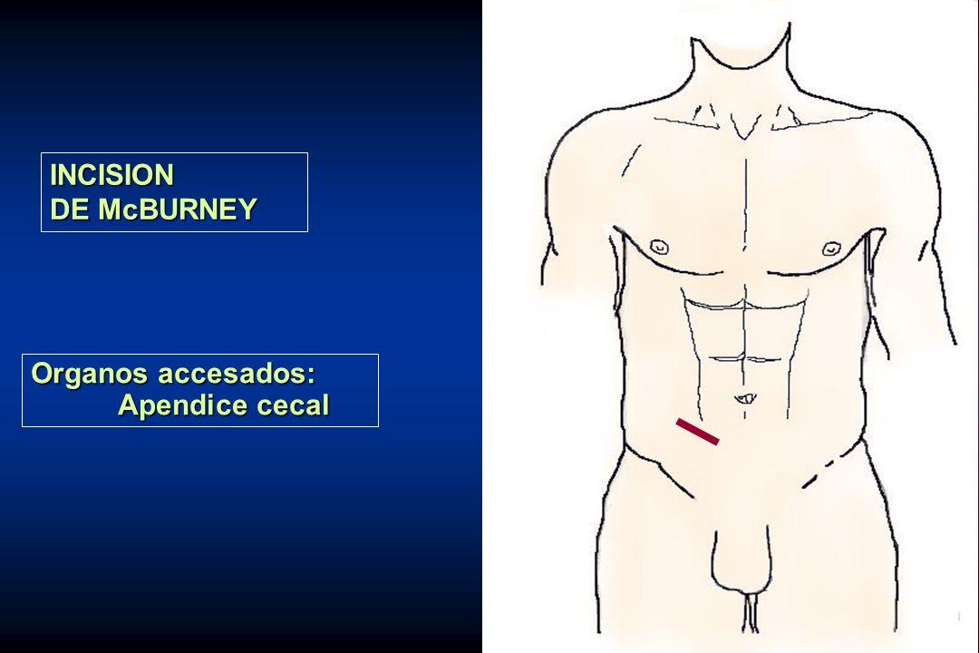 INCISION DE McBURNEY Organos accesados: Apendice cecal
