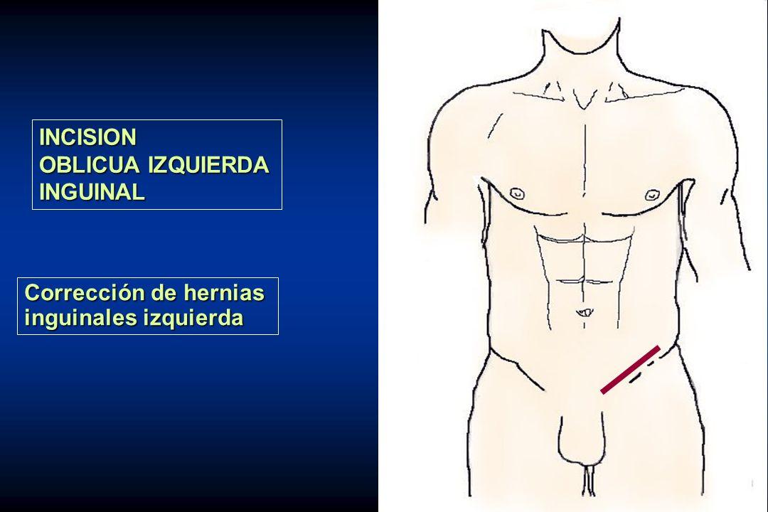 INCISION OBLICUA IZQUIERDA INGUINAL Corrección de hernias inguinales izquierda