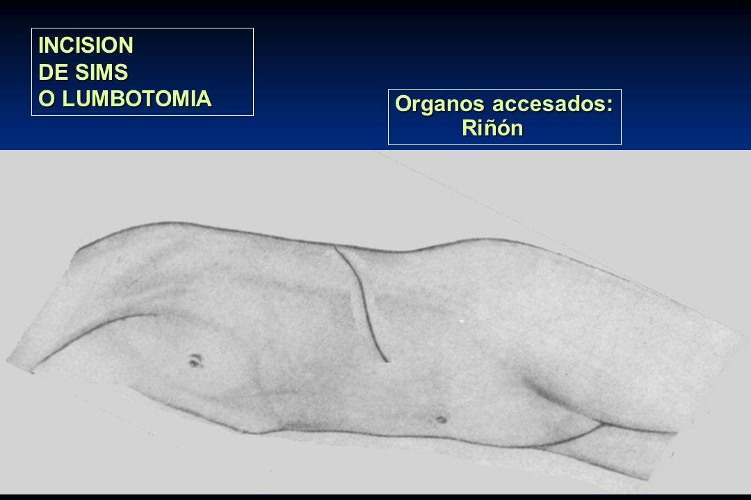 INCISION DE SIMS O LUMBOTOMIA Organos accesados: Riñón