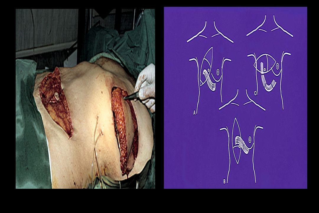 COMPLICACIONES - Sangramiento - Seroma - Necrosis cutánea de la piel nativa - Necrosis cutánea de la piel del colgajo - Necrosis grasa Esta última es la más frecuente 20%.