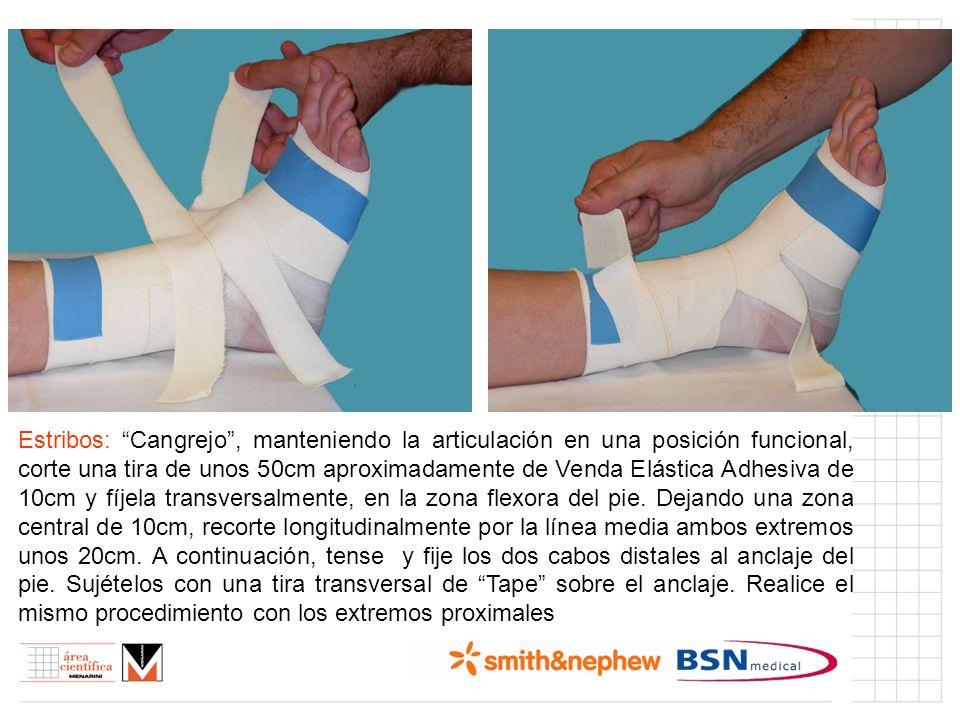 Índice (I) Estribos: Cangrejo, manteniendo la articulación en una posición funcional, corte una tira de unos 50cm aproximadamente de Venda Elástica Ad