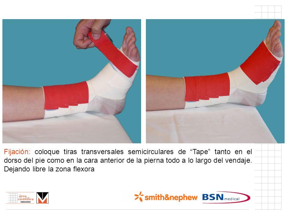 Índice (I) Fijación: coloque tiras transversales semicirculares de Tape tanto en el dorso del pie como en la cara anterior de la pierna todo a lo larg