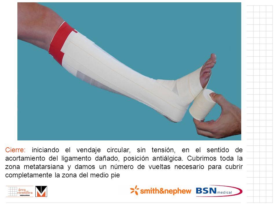 Índice (I) Cierre: iniciando el vendaje circular, sin tensión, en el sentido de acortamiento del ligamento dañado, posición antiálgica. Cubrimos toda