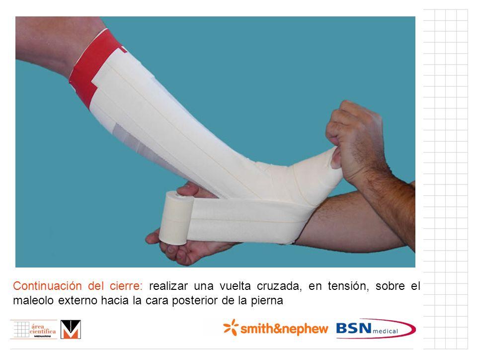 Índice (I) Continuación del cierre: realizar una vuelta cruzada, en tensión, sobre el maleolo externo hacia la cara posterior de la pierna