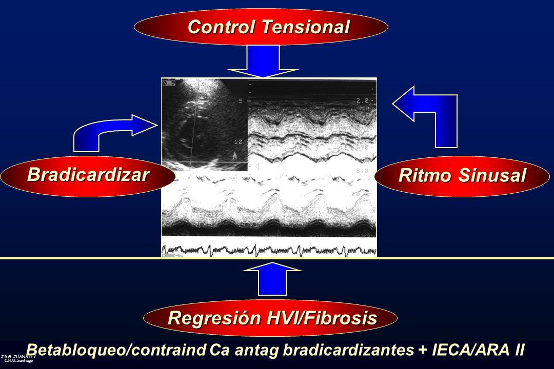 J.R.G. JUANATEY C.H.U.Santiago Regresión HVI/Fibrosis Control Tensional Bradicardizar Ritmo Sinusal Betabloqueo/contraind Ca antag bradicardizantes +