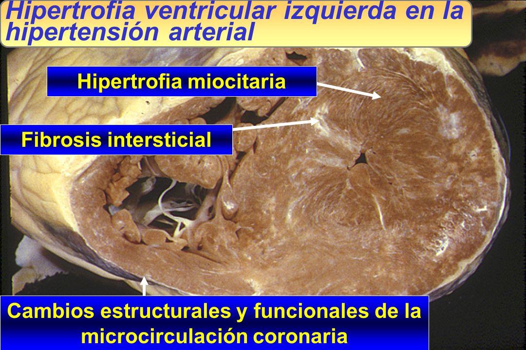 J.R.G. JUANATEY C.H.U.Santiago Cambios estructurales y funcionales de la microcirculación coronaria Hipertrofia ventricular izquierda en la hipertensi