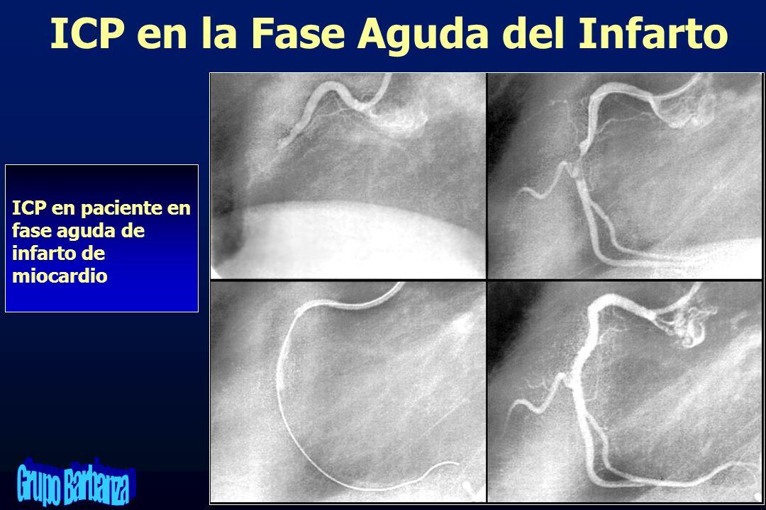 ICP en paciente en fase aguda de infarto de miocardio ICP en la Fase Aguda del Infarto