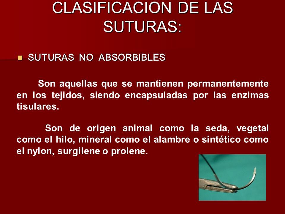 CLASIFICACION DE LAS SUTURAS: SUTURAS NO ABSORBIBLES SUTURAS NO ABSORBIBLES Son aquellas que se mantienen permanentemente en los tejidos, siendo encap