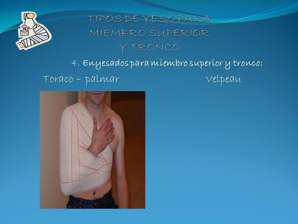 4. Enyesados para miembro superior y tronco: Toraco – palmar Velpeau