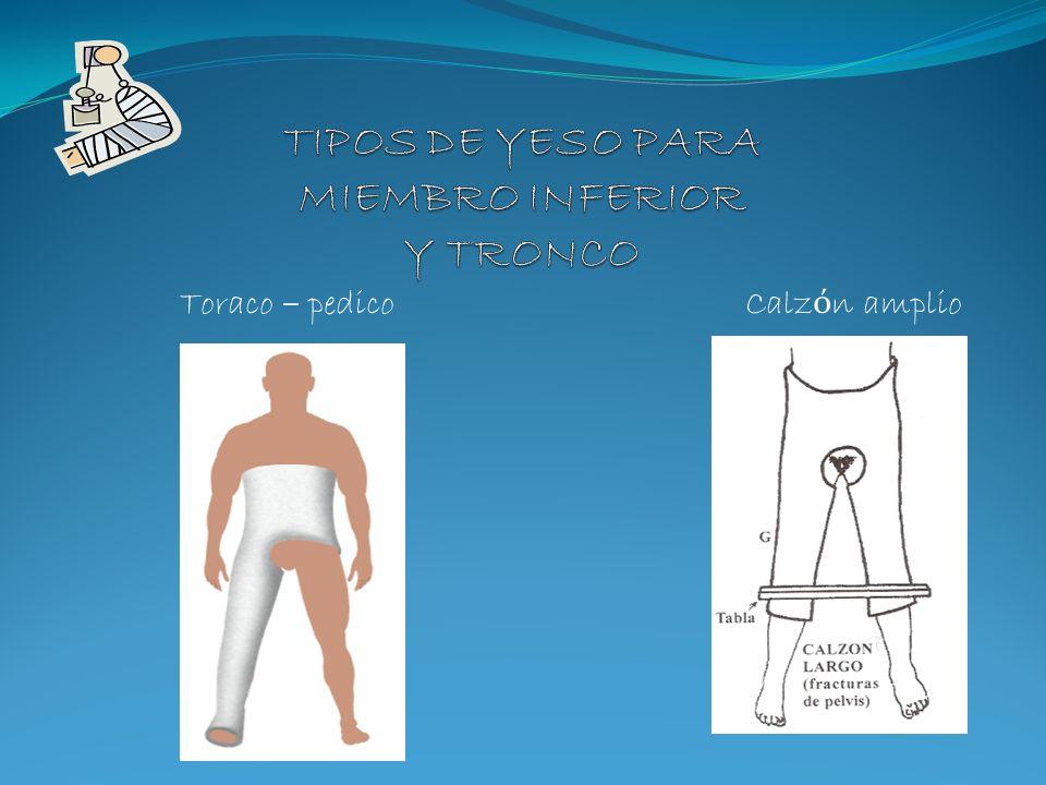 Son vendas o mallas de algod ó n impregnadas con yeso, que se utilizan para inmovilizar una lesi ó n del cuerpo del sistema m ú sculo-esquel é tico.