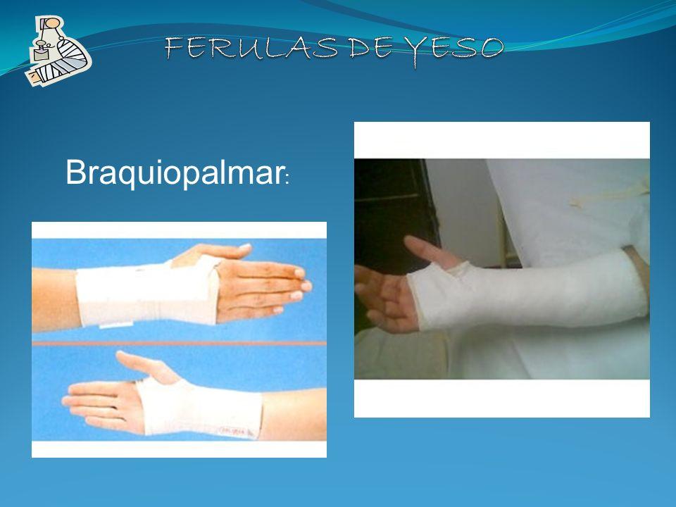 TIPOS DE FERULA: BRAQUIO PALMAR Braquiopalmar :