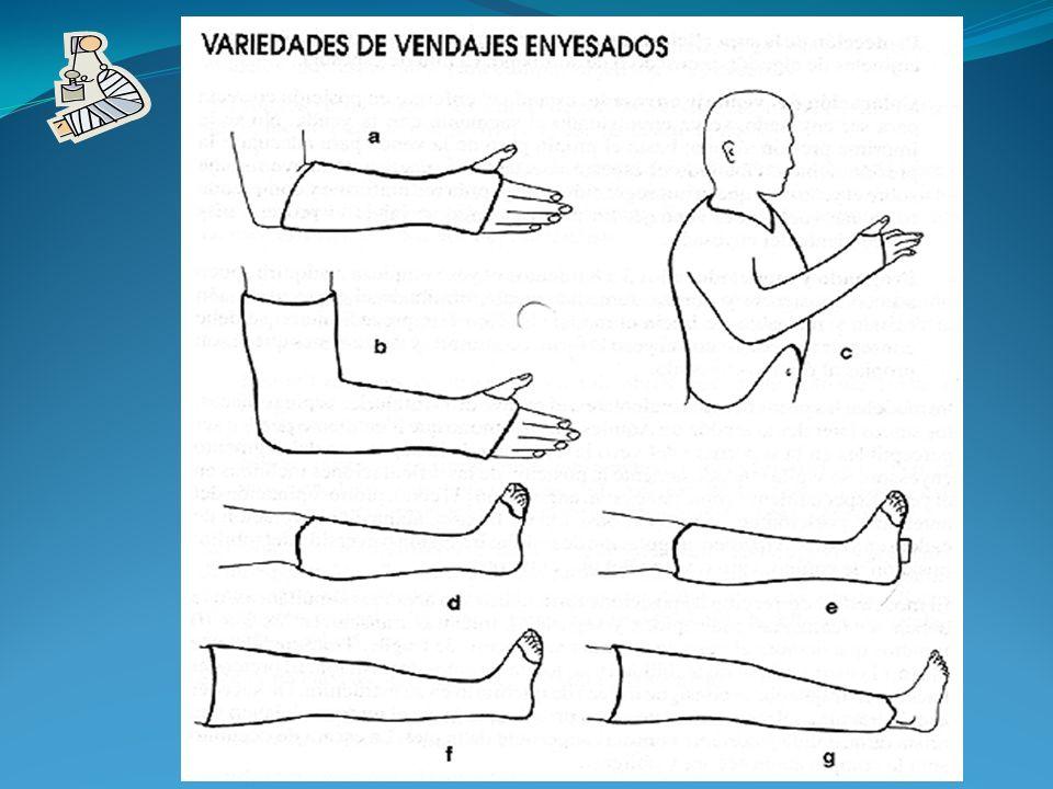 1.- Se les debe de explicar de forma sencilla y clara el procedimiento a seguir.