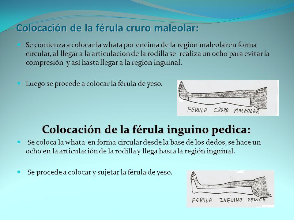 Colocación de la férula tibio pedica: La whata se coloca en forma circular desde la base de los dedos, haciendo un ocho en la articulación del tobillo, hasta llegar a la tuberosidad anterior de la tibia.