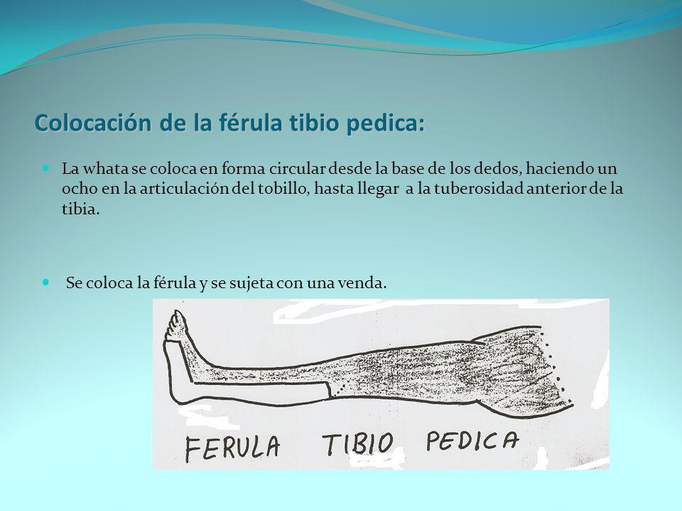 Colocación de la férula canadiense o férula en U: Se comienza a colocar la whata desde la articulación del hombro, haciendo un ocho en el codo hasta la región axilar.