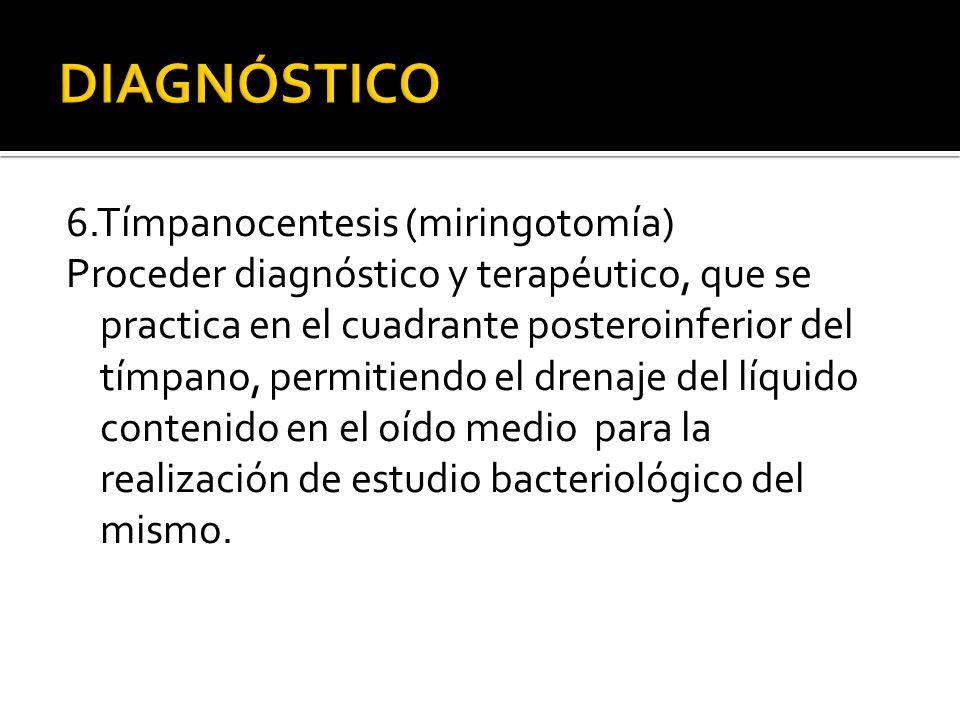 6.Tímpanocentesis (miringotomía) Proceder diagnóstico y terapéutico, que se practica en el cuadrante posteroinferior del tímpano, permitiendo el drena
