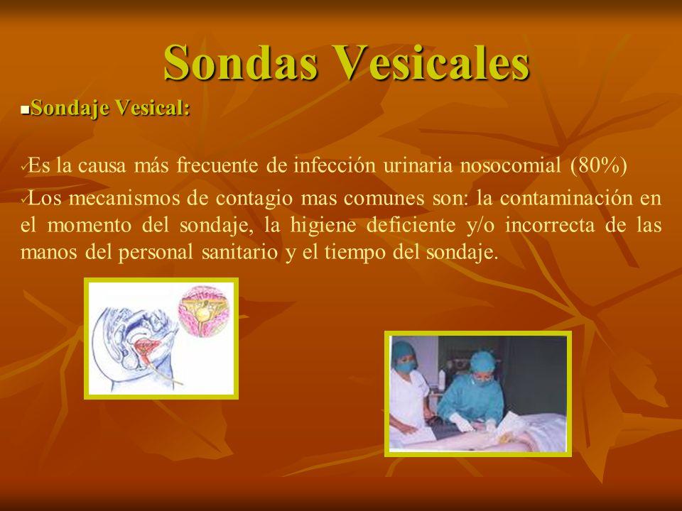 Sondas Vesicales Sondaje Vesical: Sondaje Vesical: Es la causa más frecuente de infección urinaria nosocomial (80%) Los mecanismos de contagio mas com