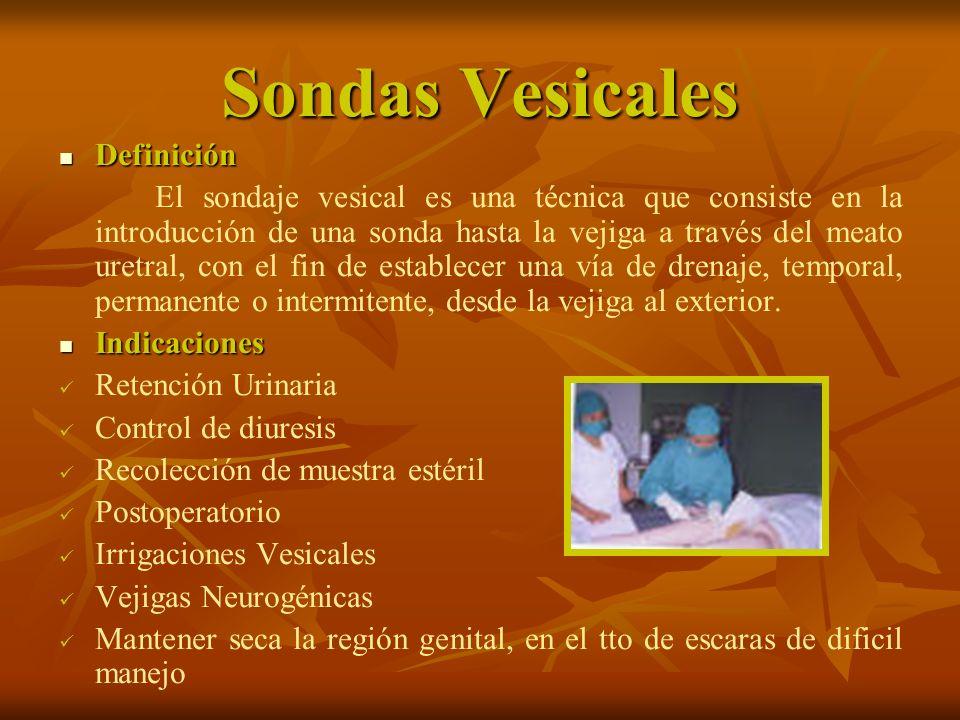 Sondas Vesicales Contraindicaciones: Contraindicaciones: Prostatitis aguda.