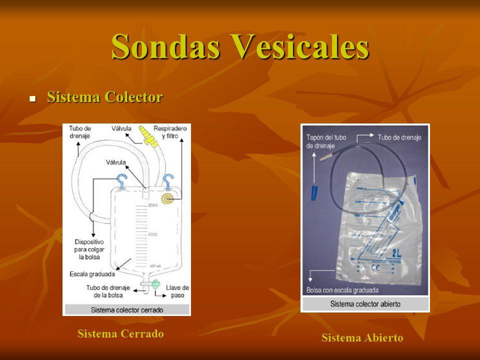 Sondas Vesicales Sistema Colector Sistema Colector Sistema Cerrado Sistema Abierto