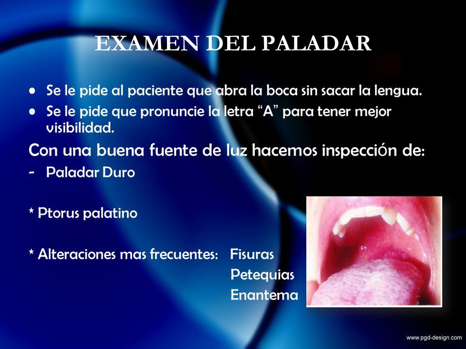 EXAMEN DEL PALADAR Se le pide al paciente que abra la boca sin sacar la lengua. Se le pide que pronuncie la letra A para tener mejor visibilidad. Con