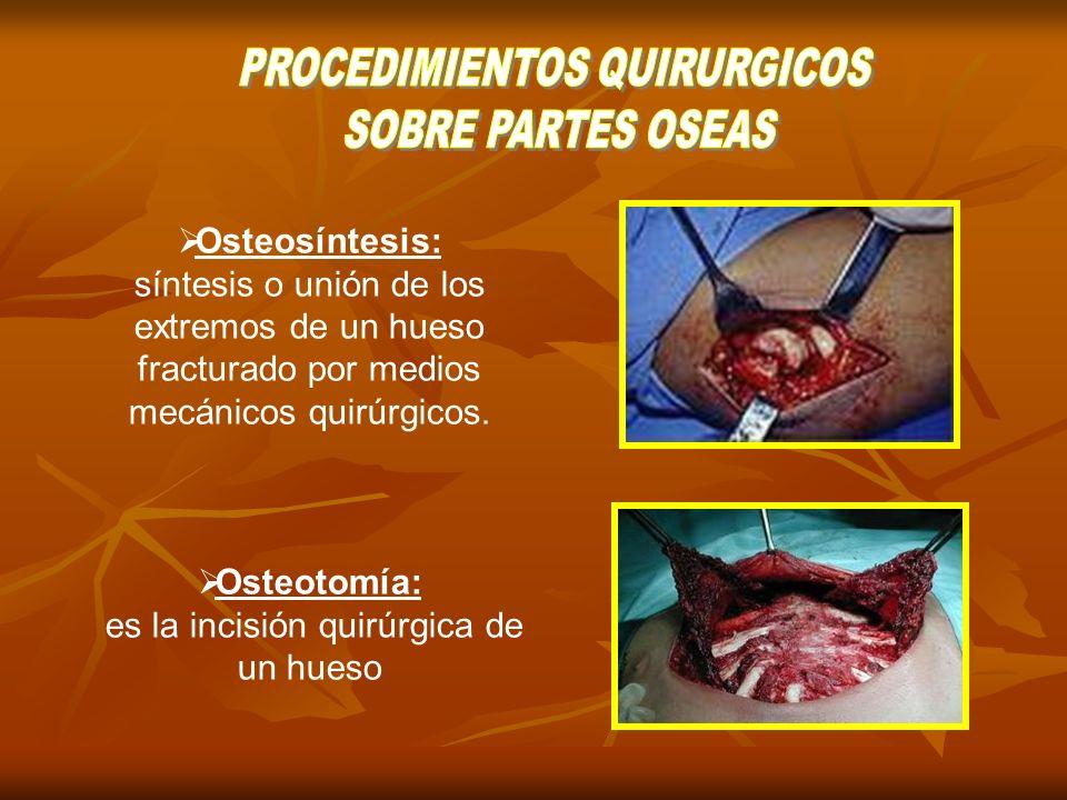 Neurectomías: Neurectomías: Escisión quirúrgica de un segmento nervioso.