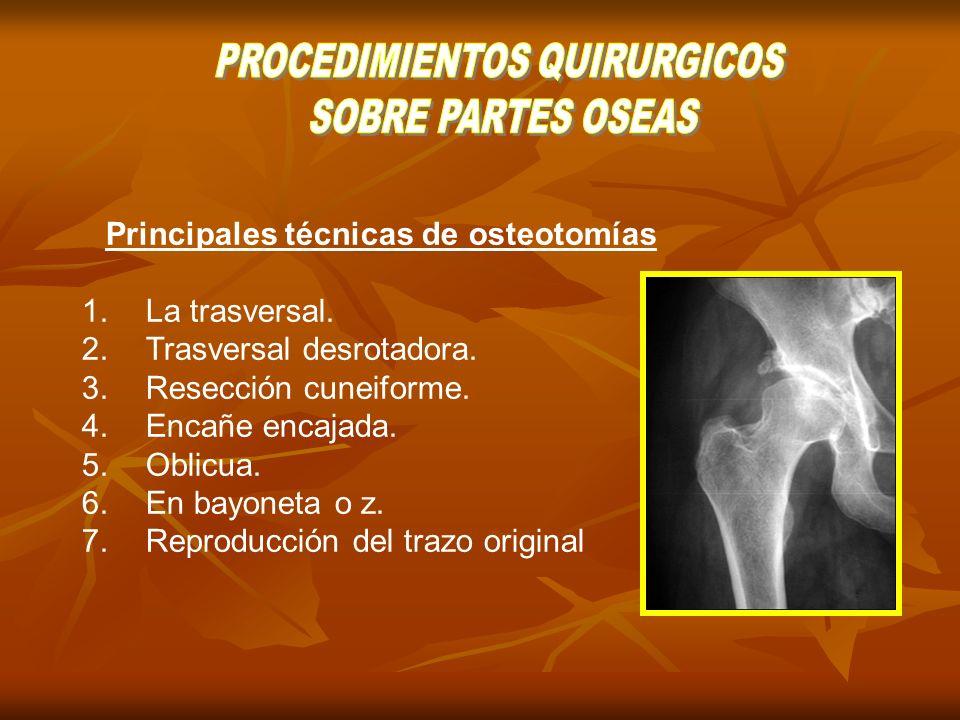 . Amputaciones: procedimiento quirúrgico en donde se hace exisión de un miembro o parte del mismo a través de una solución de continuidad del tejido óseo Amputaciones: procedimiento quirúrgico en donde se hace exisión de un miembro o parte del mismo a través de una solución de continuidad del tejido óseo
