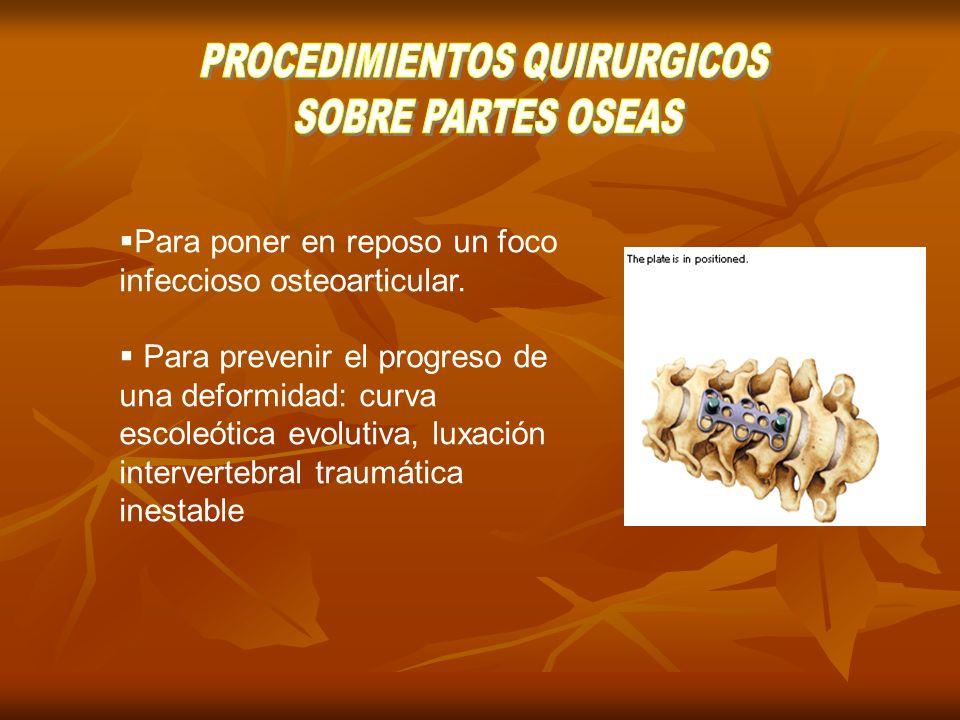 Tipos de técnicas Intra-articular (recepción del cartílago articular) Extra-articular (injertos óseos para articulares) Mixtas