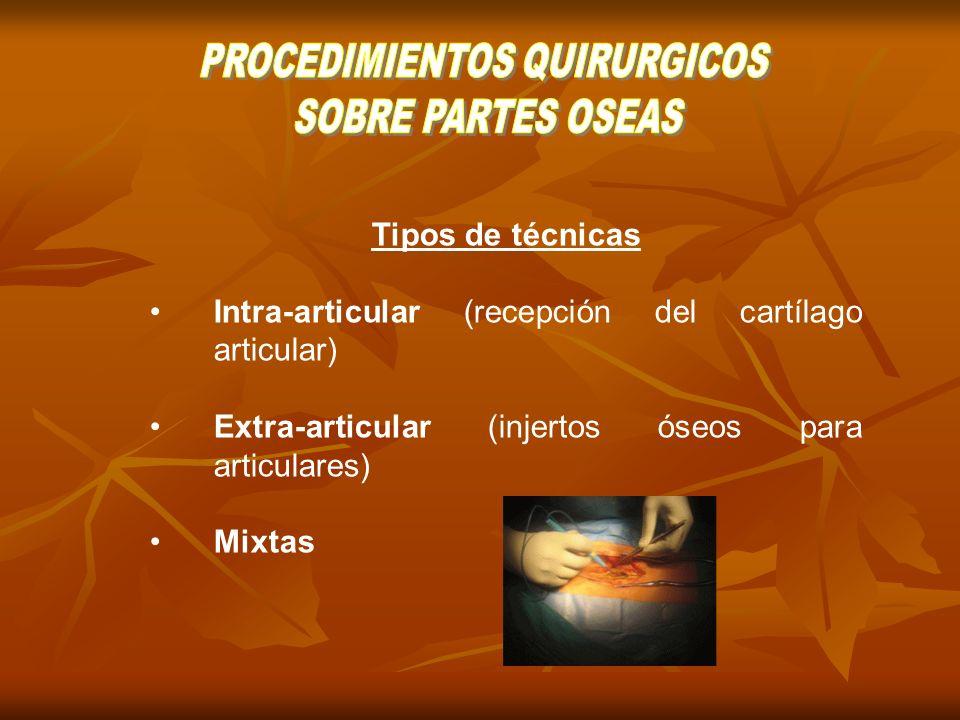 Artroplastia: cirugía plástica de las articulaciones, formación de articulaciones accidentales para remediar la anquilosis.