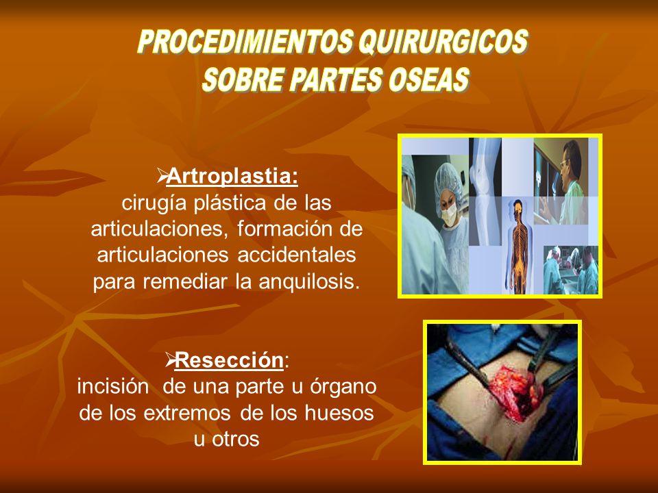 Capsulectomia: Es la extirpación quirúrgica de la capsula de una articulación.