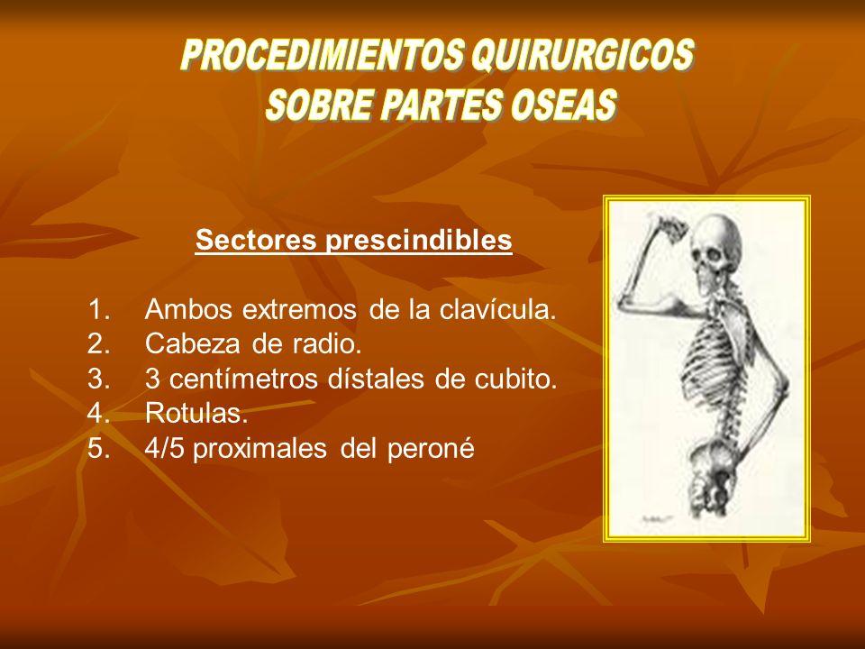 Neurectomía: Escisión quirúrgica de un segmento nervioso.