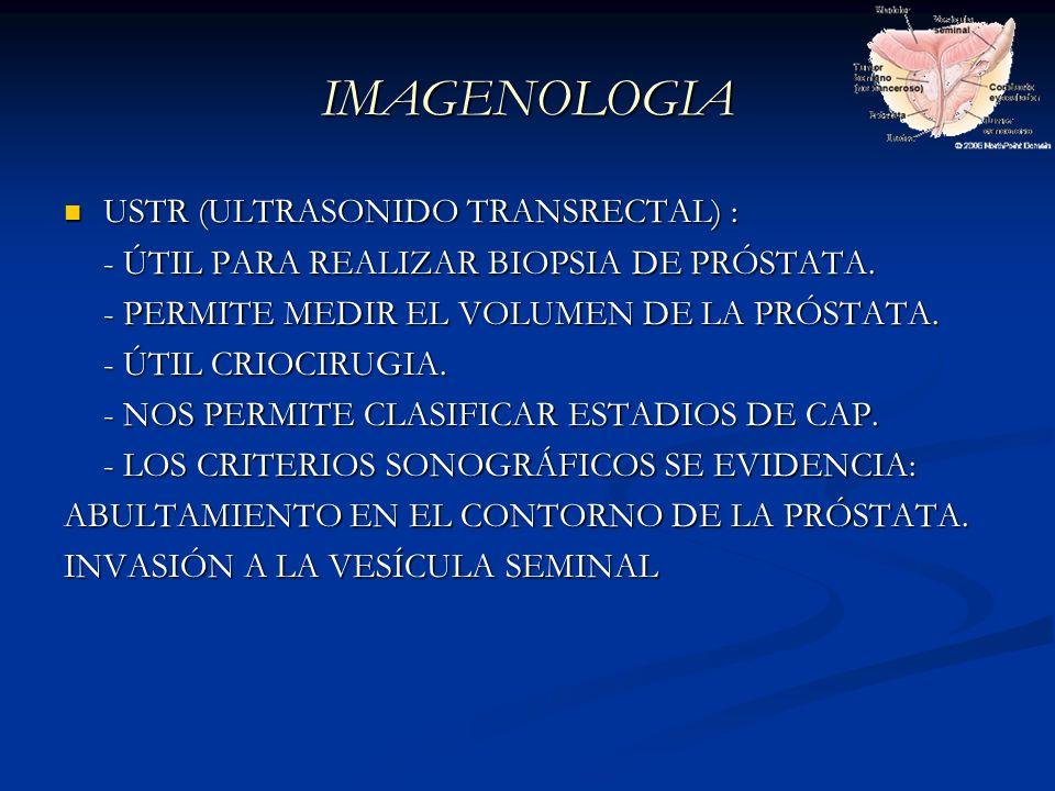 IMAGENOLOGIA USTR (ULTRASONIDO TRANSRECTAL) : USTR (ULTRASONIDO TRANSRECTAL) : - ÚTIL PARA REALIZAR BIOPSIA DE PRÓSTATA. - PERMITE MEDIR EL VOLUMEN DE