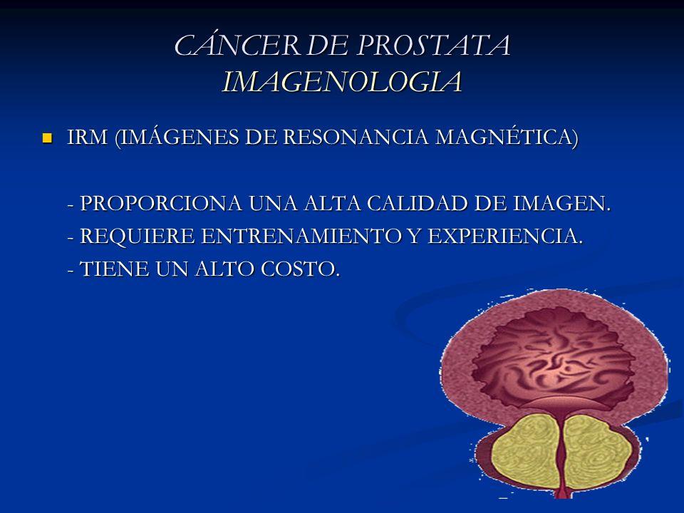 IRM (IMÁGENES DE RESONANCIA MAGNÉTICA) IRM (IMÁGENES DE RESONANCIA MAGNÉTICA) - PROPORCIONA UNA ALTA CALIDAD DE IMAGEN. - REQUIERE ENTRENAMIENTO Y EXP