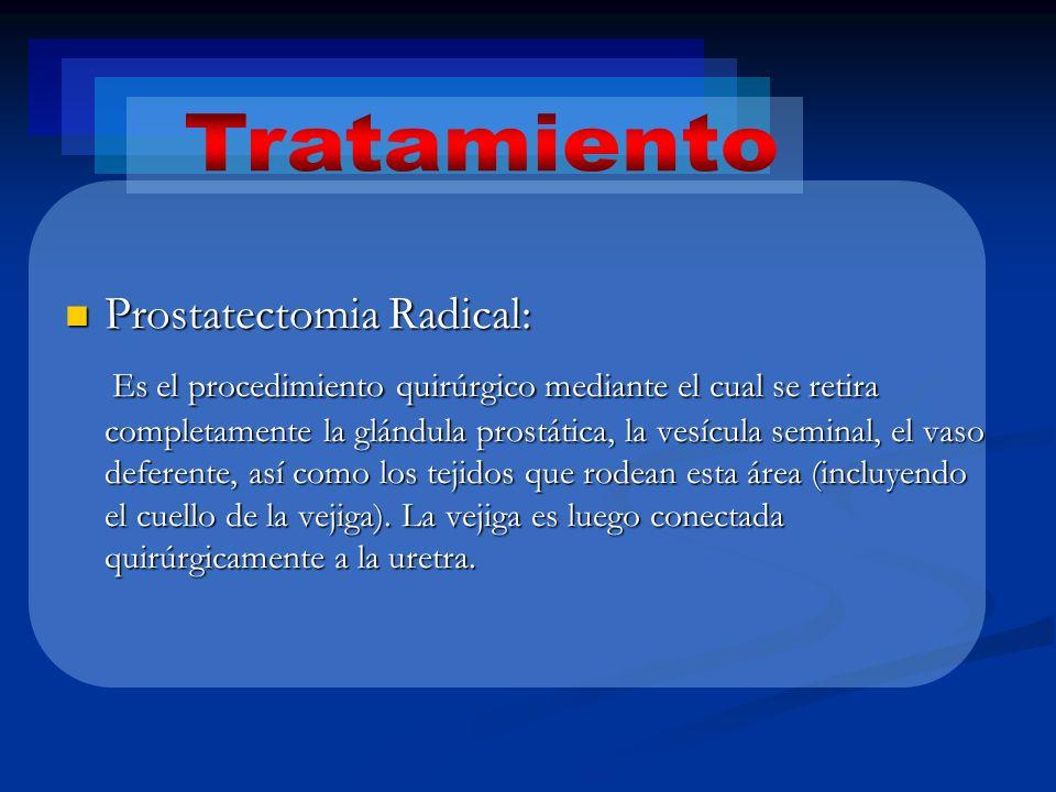 Prostatectomia Radical: Prostatectomia Radical: Es el procedimiento quirúrgico mediante el cual se retira completamente la glándula prostática, la ves