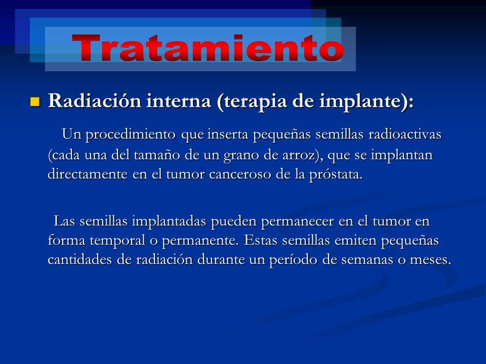 Radiación interna (terapia de implante): Radiación interna (terapia de implante): Un procedimiento que inserta pequeñas semillas radioactivas (cada un