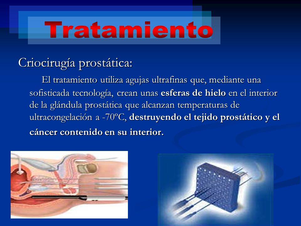 Criocirugía prostática: El tratamiento utiliza agujas ultrafinas que, mediante una sofisticada tecnología, crean unas esferas de hielo en el interior