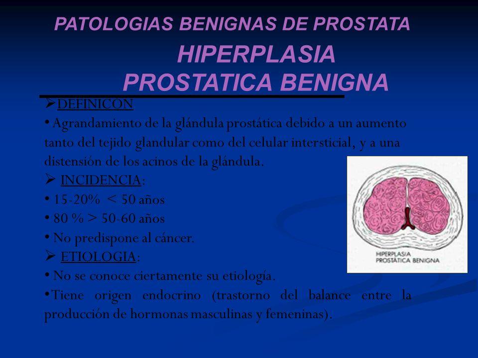 HIPERPLASIA PROSTATICA BENIGNA PATOLOGIAS BENIGNAS DE PROSTATA DEFINICÓN Agrandamiento de la glándula prostática debido a un aumento tanto del tejido