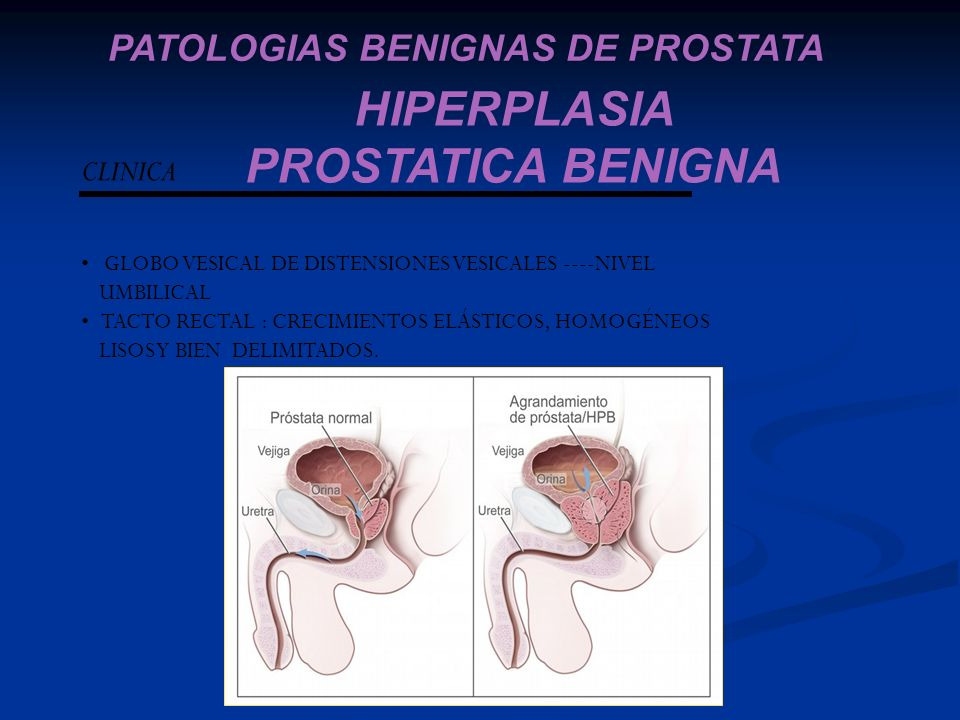 HIPERPLASIA PROSTATICA BENIGNA PATOLOGIAS BENIGNAS DE PROSTATA CLINICA GLOBO VESICAL DE DISTENSIONES VESICALES ----NIVEL UMBILICAL TACTO RECTAL : CREC