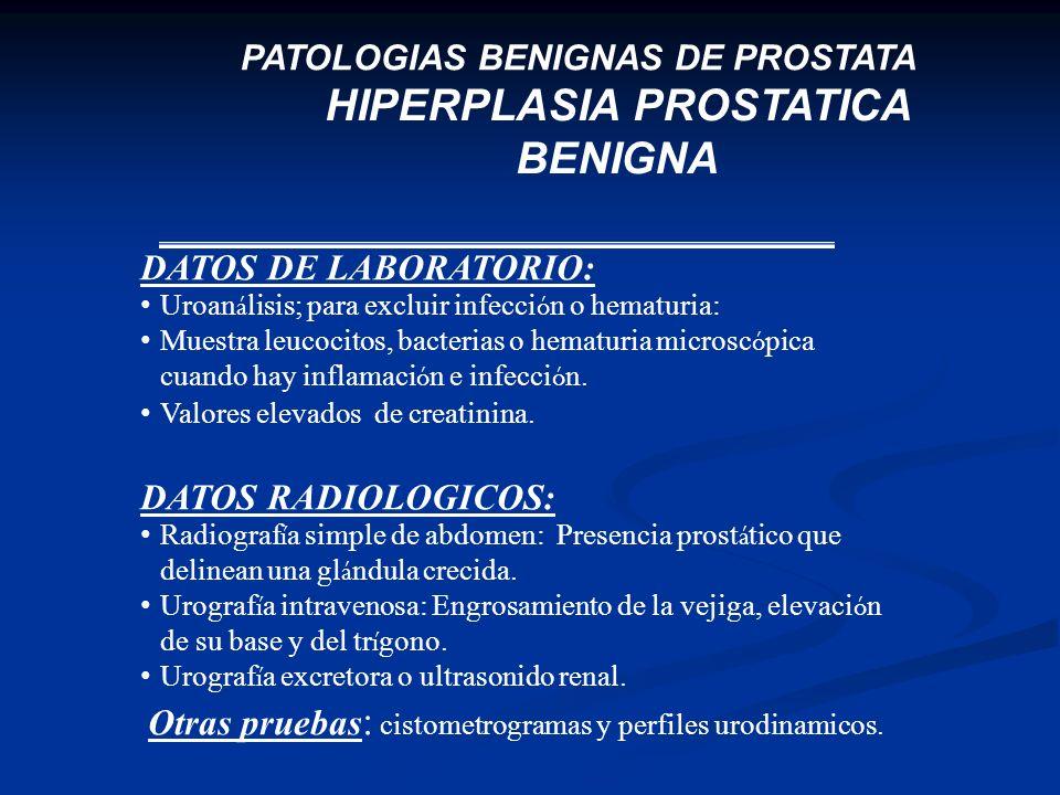 HIPERPLASIA PROSTATICA BENIGNA PATOLOGIAS BENIGNAS DE PROSTATA DATOS DE LABORATORIO: Uroan á lisis; para excluir infecci ó n o hematuria: Muestra leuc