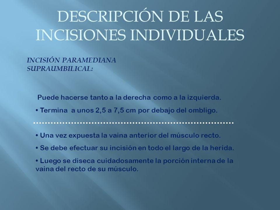 DESCRIPCIÓN DE LAS INCISIONES INDIVIDUALES INCISIÓN PARAMEDIANA INFRAUMBILICAL: Similar a la recién descrita.