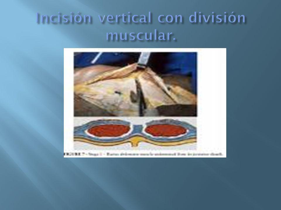La incisión subcostal comienza exactamente en la línea media a unos 2,5 a 5 cm.