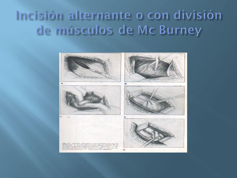 Es la extensión de la incisión de Mc Burney mediante la sección de los músculos oblicuos y la vaina de los rectos.