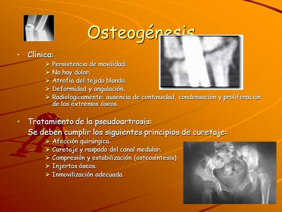 3.Consolidación Viciosa Es un trastorno de la osteogenesesis el la cual la fractura consolida, pero consolida en una forma viciosa, es decir que los elementos fracturados no guardan una relación anatómica aceptable, por la cual puede quedar como secuela colgamiento, acortamientos o incurvaciones, que se hacen mas visibles en las fracturas de los huesos largos de los miembros.