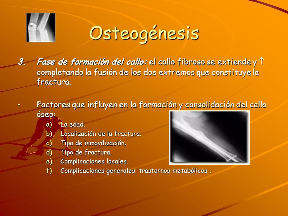 Osteogénesis TRASTORNOS DE LA OSTEOGÉNESIS: 1.Retardo de la consolidación.