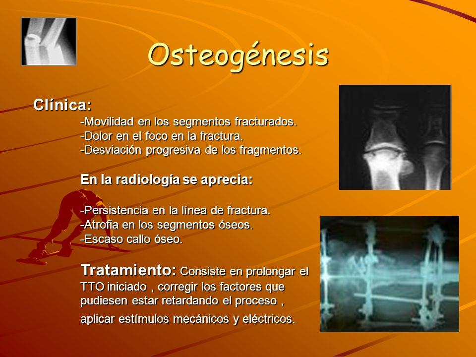 Osteogénesis 2.Pseudoartrosis: No unión o ausencia de consolidación.