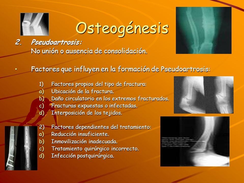 Osteogénesis Clasificación de las pseudoartrosis:Clasificación de las pseudoartrosis: Hipertróficas, viables o vasculares: Hipertróficas, viables o vasculares: Persistencia de solución de continuidad de los extremos óseos.