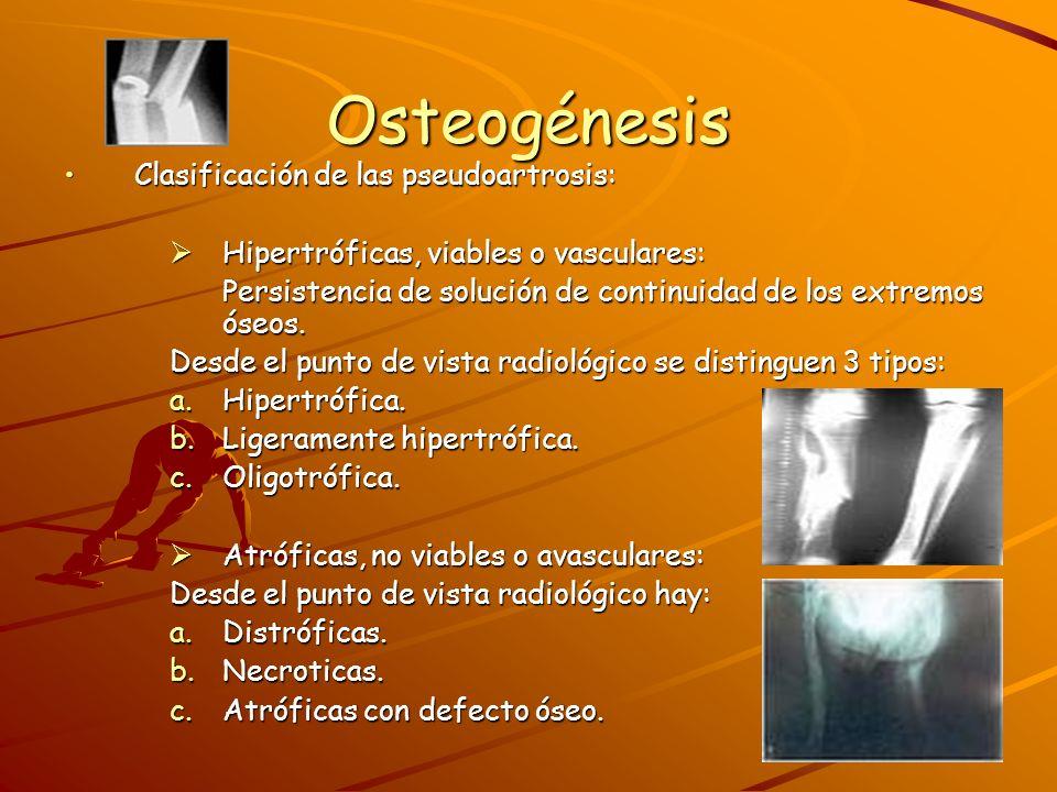 Osteogénesis Clínica:Clínica: Persistencia de movilidad.