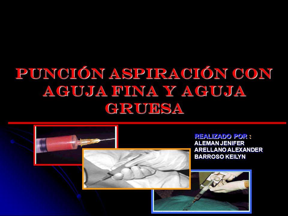 INDICACIONES Establecer un Diagnostico Histológico (masa mamaria palpable).