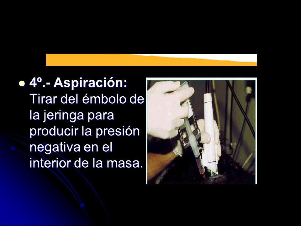 4º.- Aspiración: Tirar del émbolo de la jeringa para producir la presión negativa en el interior de la masa. 4º.- Aspiración: Tirar del émbolo de la j