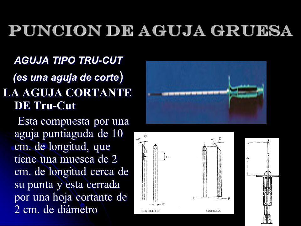 AGUJA TIPO TRU-CUT (es una aguja de corte ) LA AGUJA CORTANTE DE Tru-Cut Esta compuesta por una aguja puntiaguda de 10 cm. de longitud, que tiene una