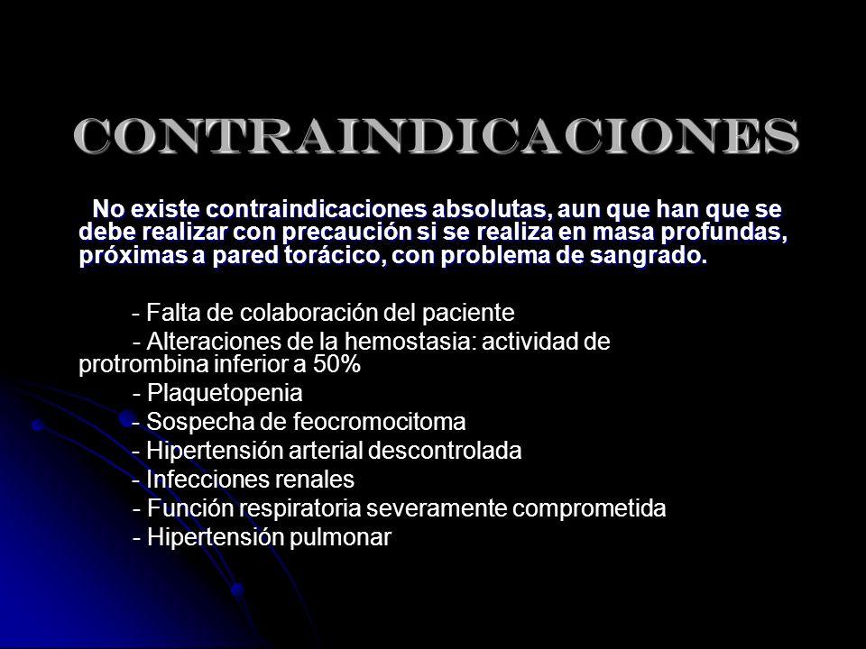 CONTRAINDICACIONES No existe contraindicaciones absolutas, aun que han que se debe realizar con precaución si se realiza en masa profundas, próximas a pared, en especial toráxico, con problema de sangrado.